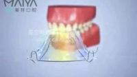 牙齿保持器的使用方法