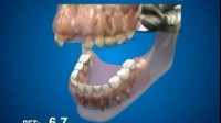 人类牙齿生长过程,看完感觉好神奇!