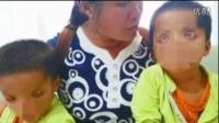 贵州双胞胎患病眼睛似外星人:无上眼睑 瞳孔上翻