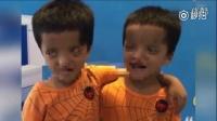 双胞胎患病眼睛似外星人  无上眼睑瞳孔上翻