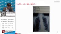 【银成医考】实践技能-普通X线影像诊断(67分钟)