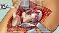 好真实的3D动画骨外科手术过程展示