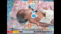 双胞胎早产只剩一个 夫妻盼保女性命