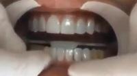 泰安牙齿矫正#泰安韩美#泰安牙齿矫正多少钱