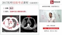 .肺炎(CT)(执业医师