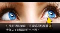 如果你的眼睛现在看到这样子的画面代表健康有问题请马上检查双眼