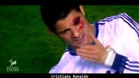 Football Stars Bleeding Face Injury