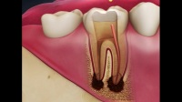 补牙多少钱?