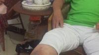 老烂腿一个月伤口愈合,疗效就是这么任性