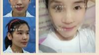 北京自体脂肪移植有副作用吗个人恢复过程经验视频感言照片