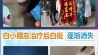 西安仁爱白癜风医学研究院   遗传性白癜风