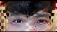 肝脏一旦出现问题,眼睛都会出现这几个症状,看看你有没有?