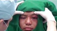 上睑下垂矫正手术过程(北京来美安)