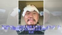 徐晓东被打 伤口缝26针